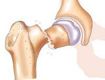 Перелом позвоночника и другие травмы спины