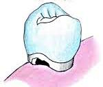 Процесс разрушения зуба при кариесе