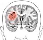 Опухоль левого полушария головного мозга