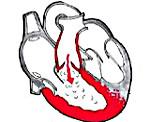 Порок клапана легочной артерии. Врожденный порок КЛА