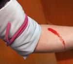Виды кровотечений: классификация, способы их остановки, таблица, доврачебная помощь || Какое кровотечение считается наиболее опасным