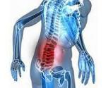 Радикулит позвоночника симптомы и лечение