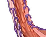 Варикоз поджелудочной железы