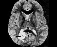 Туберкулома головного мозга