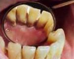 Зубной камень или кариес у людей