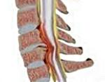 Миелопатия грудного отдела позвоночника симптомы