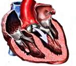 Митрально-аортальный порок