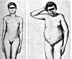 Гипергонадотропный гипогонадизм у мужчин лечение