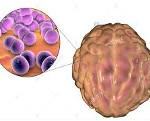 Менингококковая инфекция осложнения