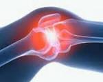 Синовит коленного сустава - симптомы, лечение и отзывы