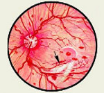Диабетическая ретинопатия - причины, симптомы, диагностика и лечение