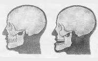Изображение - Вывих нижнечелюстного сустава симптомы 68a4053c8ccf998b1d2157decddf7870