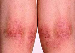 атопический дерматит на коленях у взрослых