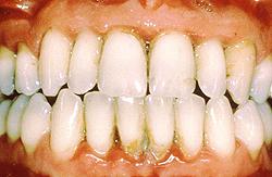 Хронический гингивит, хронический катаральный гингивит (фото)