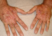 Гемохромaтоз печени