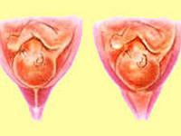 Признаки ицн при беременности по узи 19