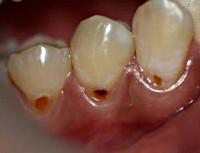 Некроз твердых тканей зуба
