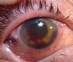 Туберкулез глазами детей 12