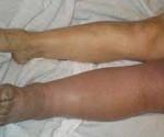 Острый окклюзионный тромбоз мвс
