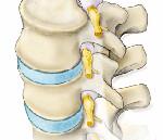 Корешковый синдром шейного отдела причины симптомы и лечение