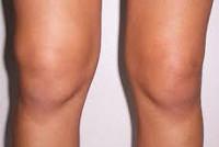 Изображение - Хронический синовит коленного сустава 6f9743de7bdaedda8255c6b77cc8580c
