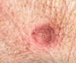 Сифилис у женщин как проявляется и выглядит выделения и признаки