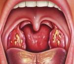 Лакунарная ангина - фото, симптомы у взрослых и лечение