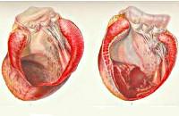 Аневризма сердца: 7 клинических симптомов, 6 причин и показаний к оперативному лечению и о прогнозе для пациента