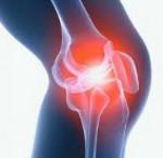 Изображение - Мениск коленного сустава у детей 73246506152ad4d23c740f72734ca3dc