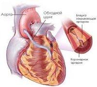 Процедура Аортокоронарное шунтирование (АКШ)