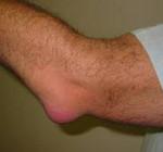Локтевой бурсит или бурсит локтевого сустава: cимптомы и лечение