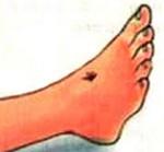 Первая помощь при колотой ране