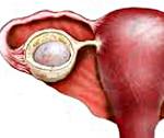 Фолликулярная киста яичника, киста желтого тела