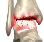 Артроз голеностопного сустава - симптомы и лечение заболевания