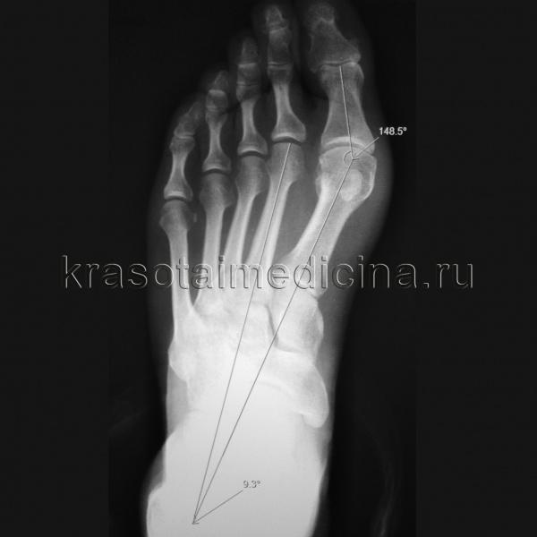 Рентгенография стопы. Вальгусная девиация первого пальца стопы, с увеличением угла отклонения 1-го пальца и угла между осями 1-й и 2-й плюсневых костей.