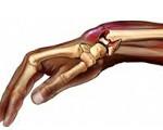 Перелом лучевой кости предплечья