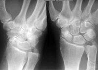 Процедура Рентгенография лучезапястного сустава