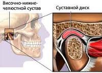 Артроз ВНЧС