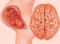 Перинатальная энцефалопатия
