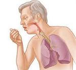 Обострение хронического бронхита: причины, симптомы, назначенное лечение, восстановительный период, советы и рекомендации врачей