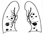Список симптомов, указывающих на метастазы в легких