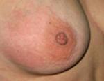 Что делать при ушибе груди