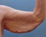 Дряблая кожа на руках как подтянуть, упражнения, маски, обертывание, косметические процедуры