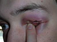Механические повреждения глаз