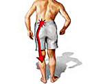 Вертеброгенная люмбалгия: что это такое, виды люмбалгии с мышечно-тоническим синдромом (хроническая, острая)