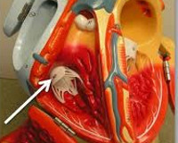 Комбинированный трикуспидальный порок сердца