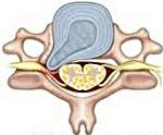 Протрузия межпозвонковых дисков шейного отдела позвоночника: лечение и симптомы. Можно ли вылечить протрузию и стеноз народными средствами?