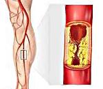 Стадии атеросклероза сосудов нижних конечностей