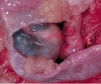 Серозная цистаденома яичника