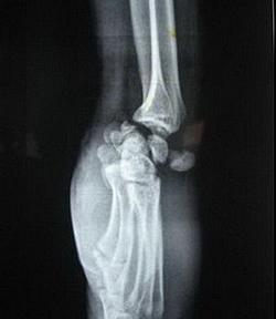Рентгенограмма при перилунарном вывихе кисти